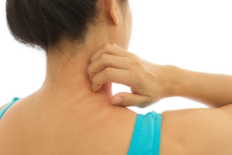 Атопичен дерматит – как се поставя диагнозата?